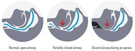 Snoring and Sleep Apnea Diagram Image