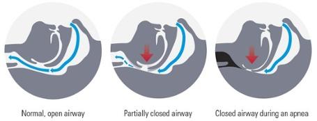 Snoring and Sleep Apnea Diagram Image