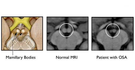 Brain Memory and MRI Image