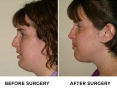 jaw-surgery-before-after-pictures