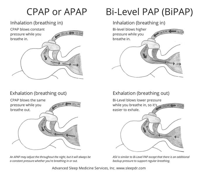 CPAP vs BiPAP Image